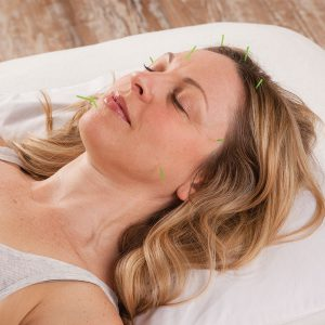 Two Trees Facial Rejuvenation Acupuncture