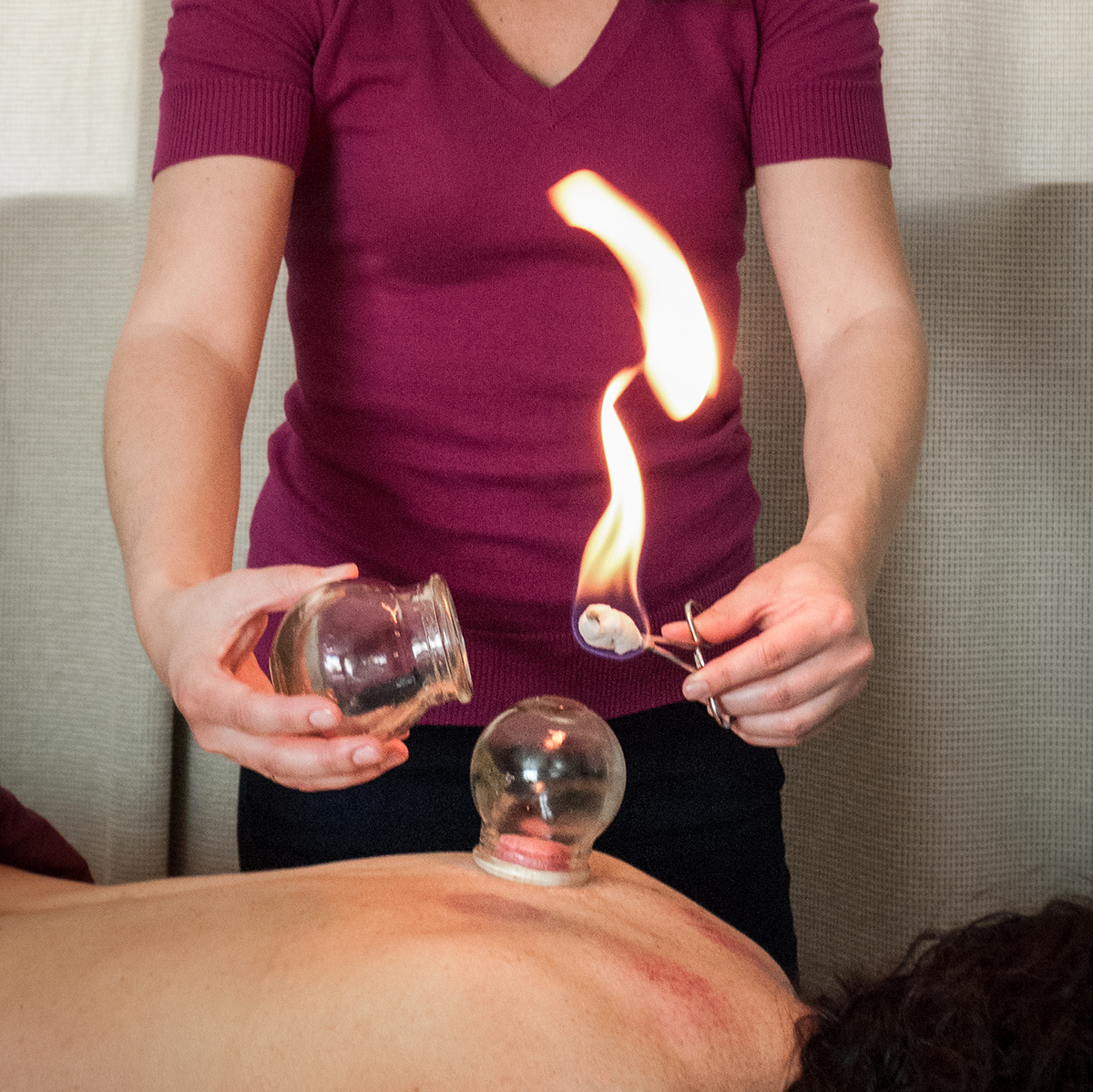 Paula Kearney, acupucture
